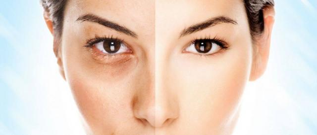 Anticoncepcional pode causar manchas na pele  conheça tratamentos ... 31a85c61fb7c8